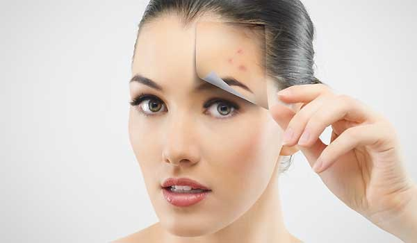 How To Care For and Prevent Pimples and Zits