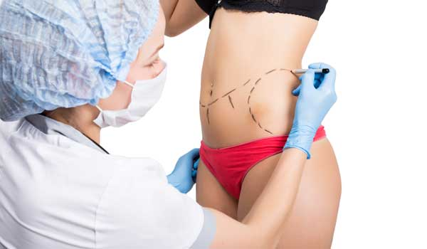 Plastic Surgery After Weight Loss - Types Of Surgical Procedures